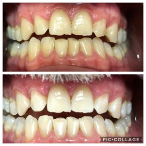 Sbiancamento dentale Gruppo Oris