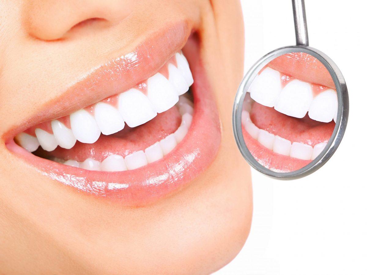 Immagine sbiancamento denti